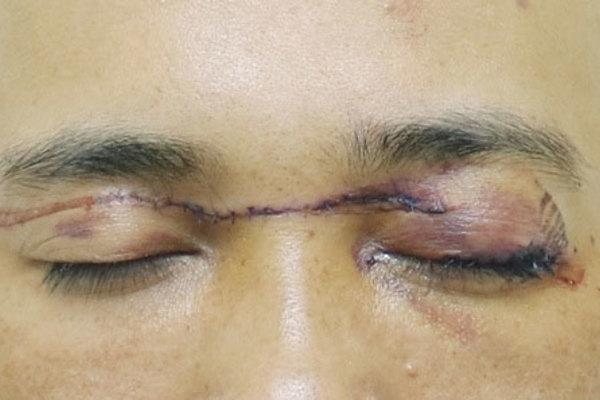 """Chạy xe trên đường, người đàn ông bị dây diều """"cắt"""" ngang hai mắt hở cả nhãn cầu"""