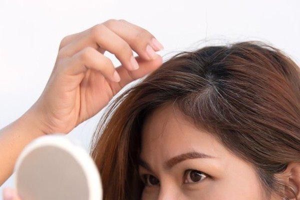 Vì sao ngày càng nhiều người tóc bạc sớm? Làm gì để tóc chậm bạc?