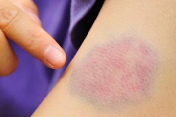 Bầm tím tay, chảy máu tự nhiên: Coi chừng căn bệnh nguy hiểm, ở viện nhiều hơn ở nhà