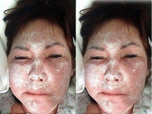 Tiêm botox làm đẹp sai vị trí, không có thuốc giải, người phụ nữ chịu hệ quả nặng nề