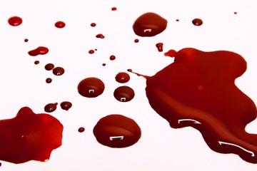 Sản phụ tử vong ở BV Việt Pháp: Rối loạn đông máu, chảy máu sau sinh nguy hiểm mức nào?