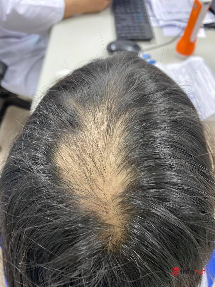 Trẻ 10 tuổi có sở thích kỳ quặc nhổ trụi tóc đỉnh đầu