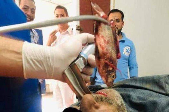 Tai nạn kỳ lạ khiến người đàn ông bị cá sống mắc kẹt trong cổ họng
