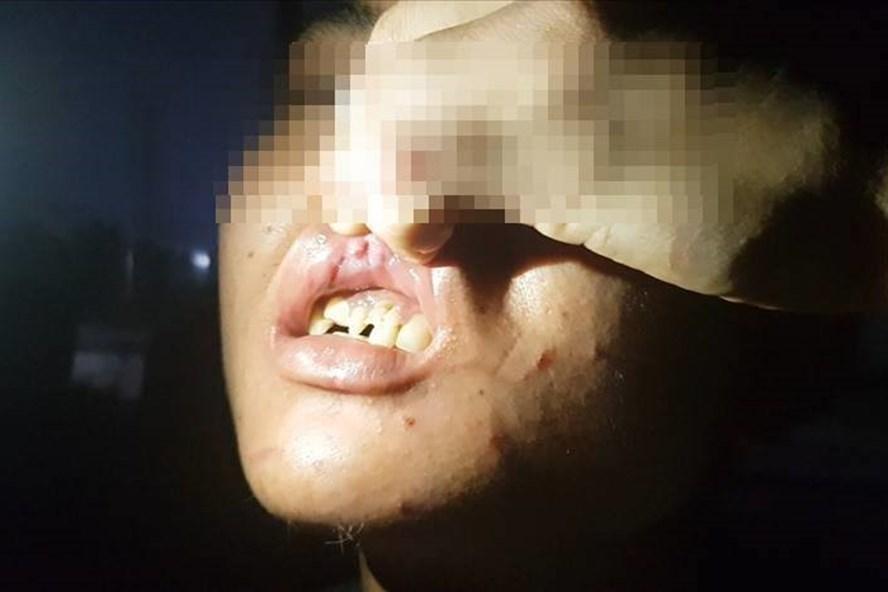 Vụ tra tấn 2 nhân viên quán bánh xèo Hiền ở Bắc Ninh