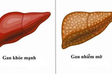 Điều trị gan nhiễm mỡ dùng thuốc gì?