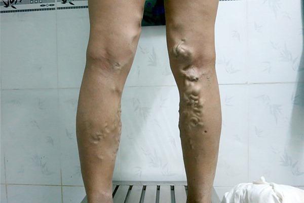 Mặc quần chật, đi giày cao gót: Thói quen gây ra căn bệnh chết người ở phụ nữ