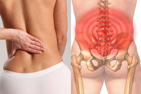 Nguyên nhân gây đau lưng và cách điều trị