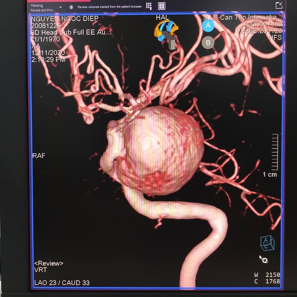 Nhức đầu nhiều năm, người phụ nữ sốc khi biết mình mang 'bom máu' trong não