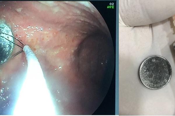 Nội soi gắp đồng xu trong dạ dày bệnh nhi 4 tuổi