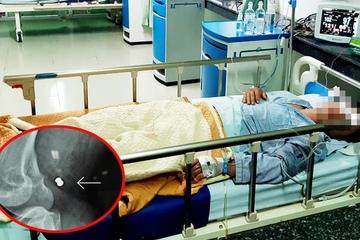 2 nhân viên bệnh viện hiến máu cứu sống người đàn ông bị thủng động, tĩnh mạch do 'đạn lạc'