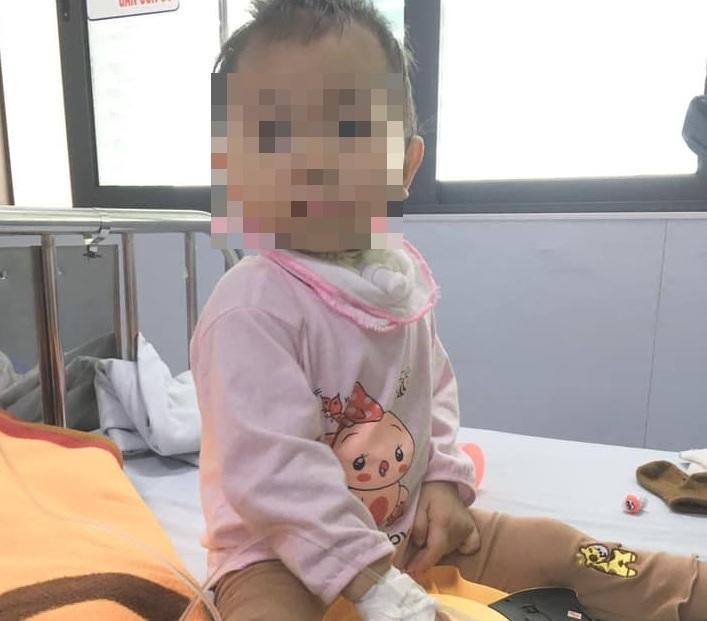 Cứu sống trẻ 19 tháng tuổi bị tay chân miệng biến chứng nặng