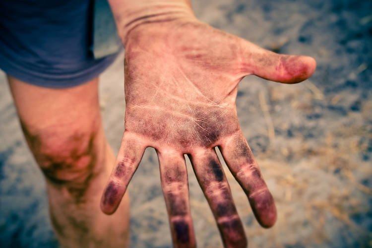 Kỳ lạ những người hoàn toàn không có dấu vân tay