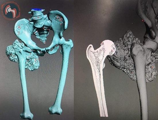 Nghiên cứu vật liệu y sinh 3D của các nhà khoa học Việt