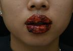 Làm hồng môi để đón Tết, nhiều chị em nhập viện