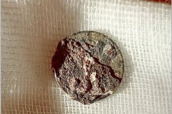 Kinh hoàng chuyện 'sống chung' với đồng xu mắc kẹt trong mũi hơn nửa thế kỷ
