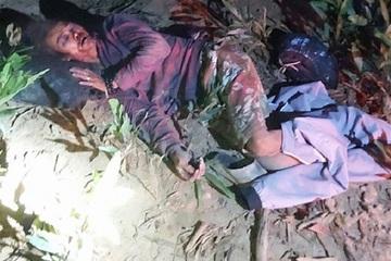 Vào rừng, một người dânbị voi tấn công chấn thương sọ não