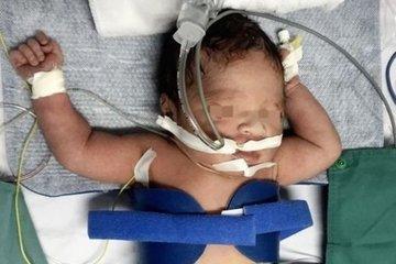 Hạ thân nhiệt cứu sống bé sơ sinh nguy kịch, não thiếu oxy