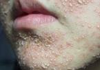 Mặt 'tan nát' vì lạm dụng bôi kem làm trắng sáng da, chữa mụn thần tốc