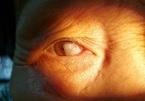 Phẫu thuật mộng mắt to nhất từ trước đến nay che kín đồng tử người bệnh