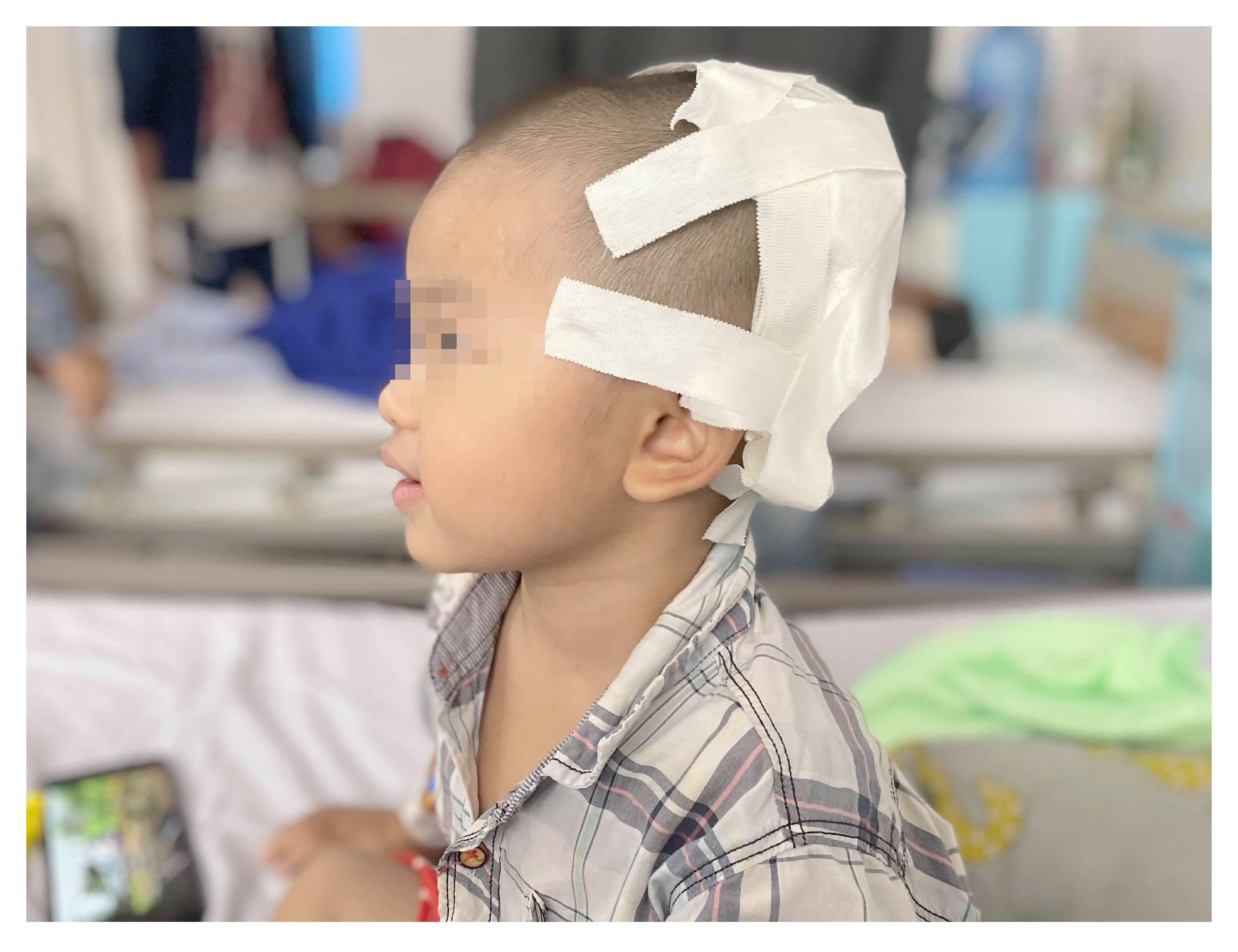 Bé 2 tuổi bị lõm hộp sọ do ngã xe đạp, dấu hiệu nhận biết triệu chứng chấn thương sọ não