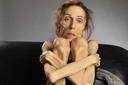 Gầy như que củi vẫn sợ béo, căn bệnh chán ăn tâm thần gây nhiều biến chứng nguy hiểm