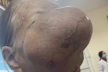 U choán nửa mặt phải, 'ăn' sâu vào xương mặt cụ bà 74 tuổi