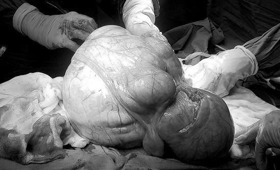 U xơ tử cung, tưởng lành hoá 'ác' vì những thói quen của hầu hết chị em