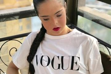 Cô gái mắc hội chứng Down trở thành người mẫu nổi tiếng