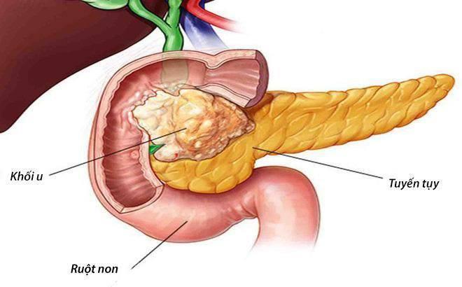 Ung thư tụy, căn bệnh nguy hiểm nếu mắc phải, rất khó phát hiện sớm