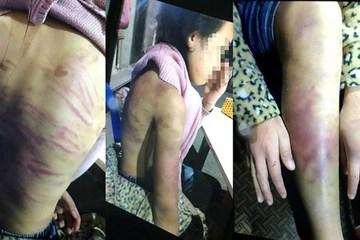 Đôi tình nhân bạo hành, hiếp dâm bé gái 12 tuổi ở Hà Nội bị khởi tố