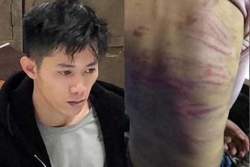 Kẻ đánh đập, hiếp dâm con gái của người tình đối diện mức án 20 năm tù