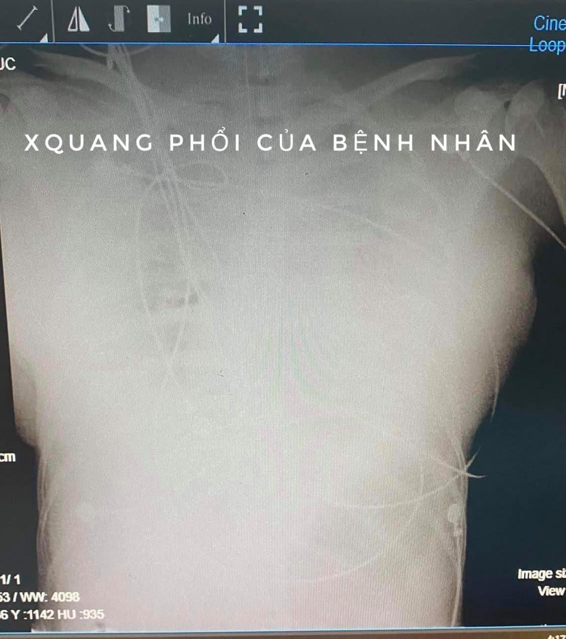 Một phụ nữ tử vong sau khi tiêm chất làm đầy nâng ngực tại nhà