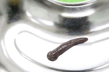 Gắp con đỉa dài 15cm sống trong khí quản người đàn ông 58 tuổi