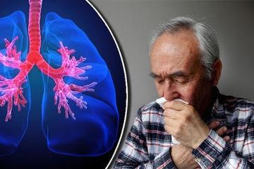 Bệnh COPD do hút thuốc lá được xem là 'sát thủ vô hình'