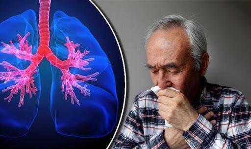 thuốc lá,bệnh phổi