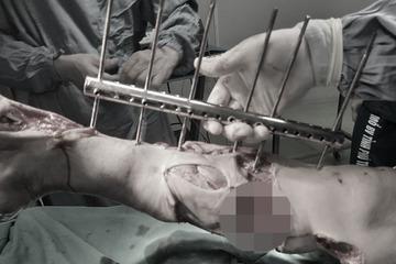 Dập nát cẳng chân do bị cuốn vào máy làm gạch, vì sao tai nạn lao động cứ xảy ra thường xuyên?