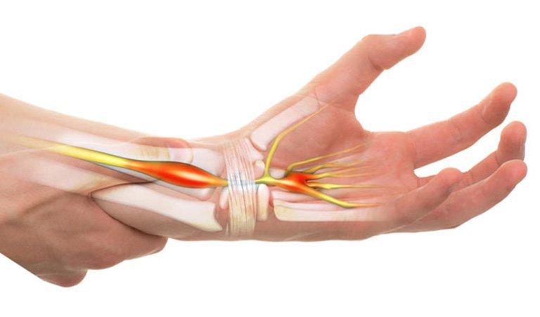 Tê tay rần rần là dấu hiệu của bệnh gì?