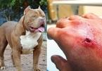 Bị chó Bully nặng hơn 30 kg tấn công, cụ bà 87 tuổi nguy kịch