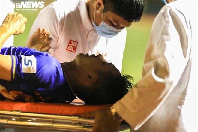 Chấn thương của cầu thủ Hùng Dũng được xử lý thế nào, mất bao lâu có thể phục hồi?