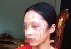 """Nghệ An: Em gái bị """"bắt nạt"""", 2 nữ sinh THCS lao vào cào cấu"""