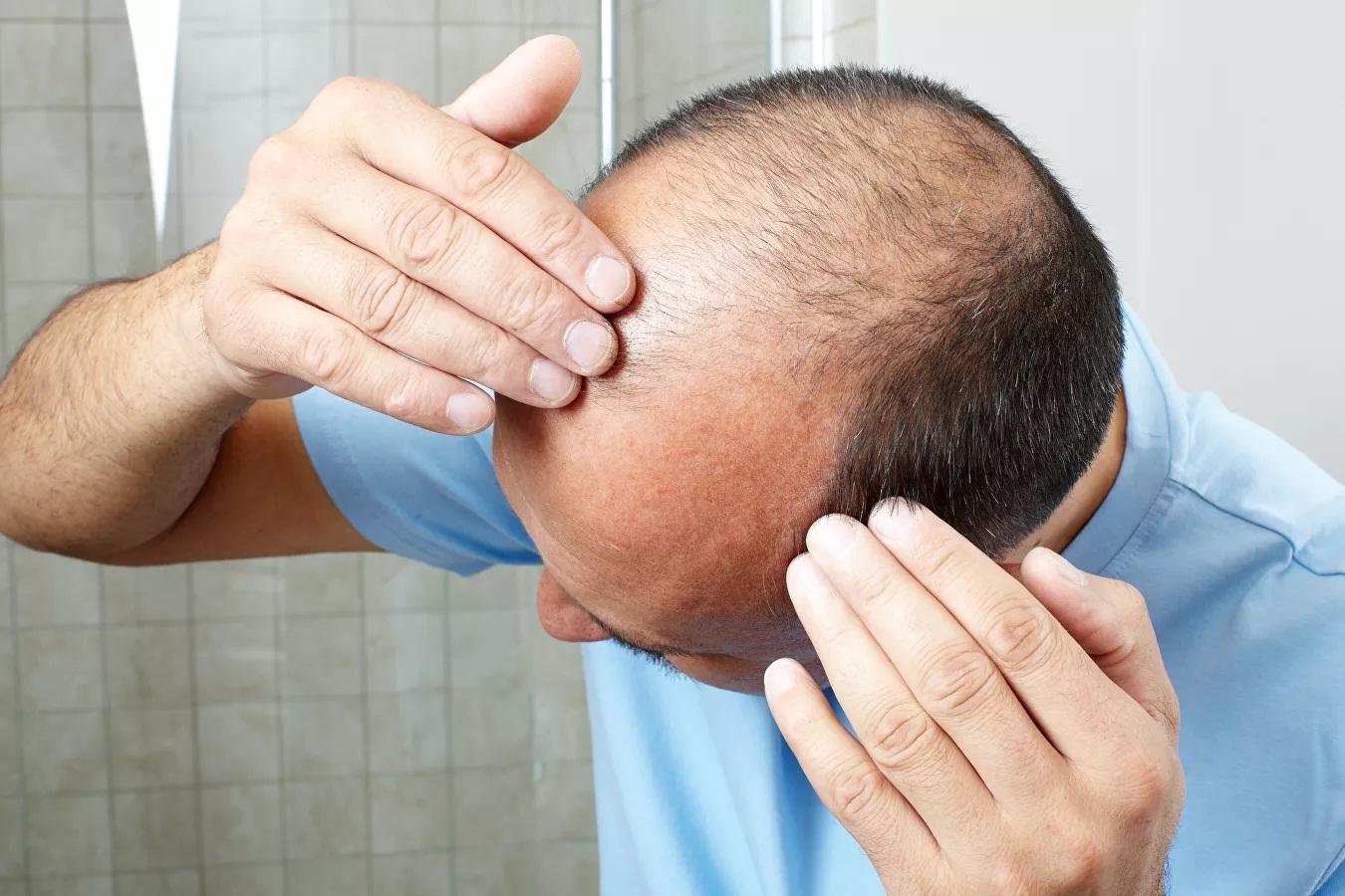 Chuyên gia Mỹ giải thích nguyên nhân rụng tóc khi căng thẳng