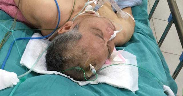Cứu bệnh nhân hôn mê sâu, dập não do tai nạn
