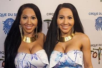 Cặp sinh đôi giống nhau nhất thế giới muốn kết hôn với một người đàn ông