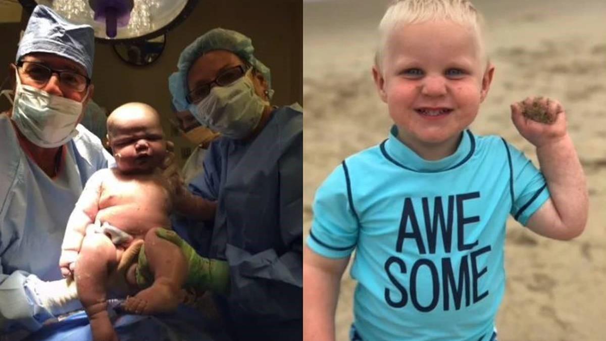 Bé trai chào đời nặng 6,4kg bằng 'con nhà người ta' 2 tháng