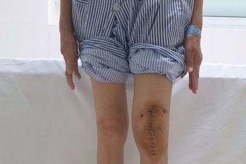 Lần đầu tiên ở Việt Nam mổ thay khớp gối cho bệnh nhân lao khớp