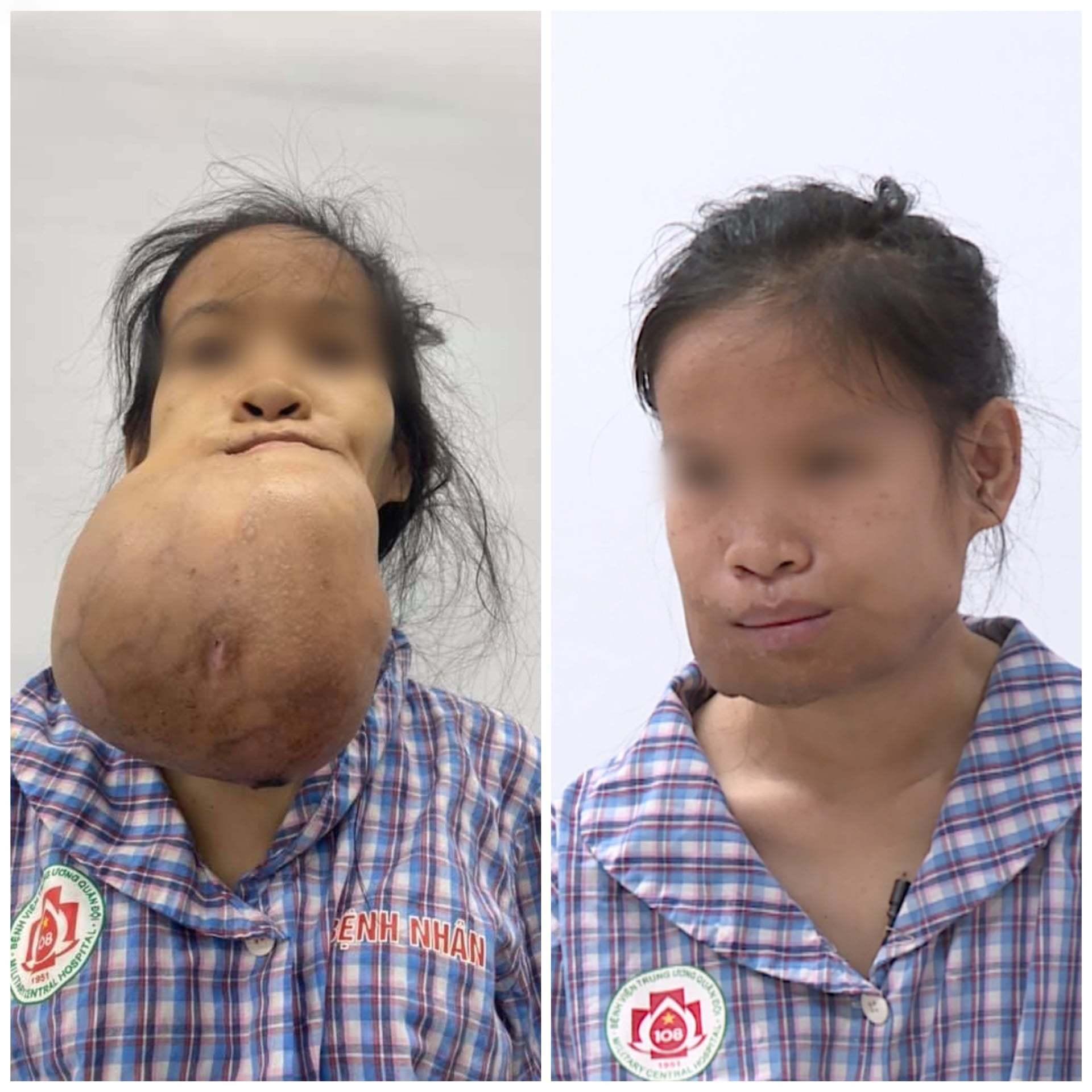 Từ một cái nhọt bé xíu, cô gái 24 tuổi gánh trên mặt khối u khổng lồ