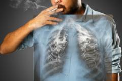 Hút 1 điếu thuốc lá giảm 5,5 phút tuổi thọ