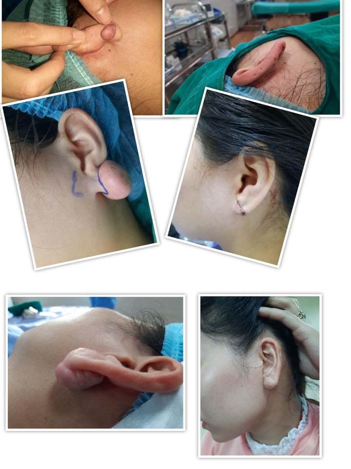 Bấm lỗ tai, nữ sinh 17 tuổi hoại tử vành tai
