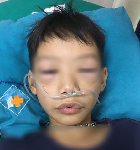 Bé trai 10 tuổi sốc phản vệ sau uống thuốc tự mua chữa ho, sốt