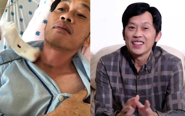 Hoài Linh,14 tỷ tiền từ thiện,Nguyễn Ngọc Long,Hoài Linh ung thư